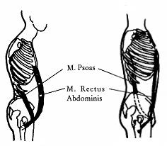 Хронически сжатая поясничная мышца (слева) негативно воздействует на осанку, глубину дыхания и состояние внутренних органов